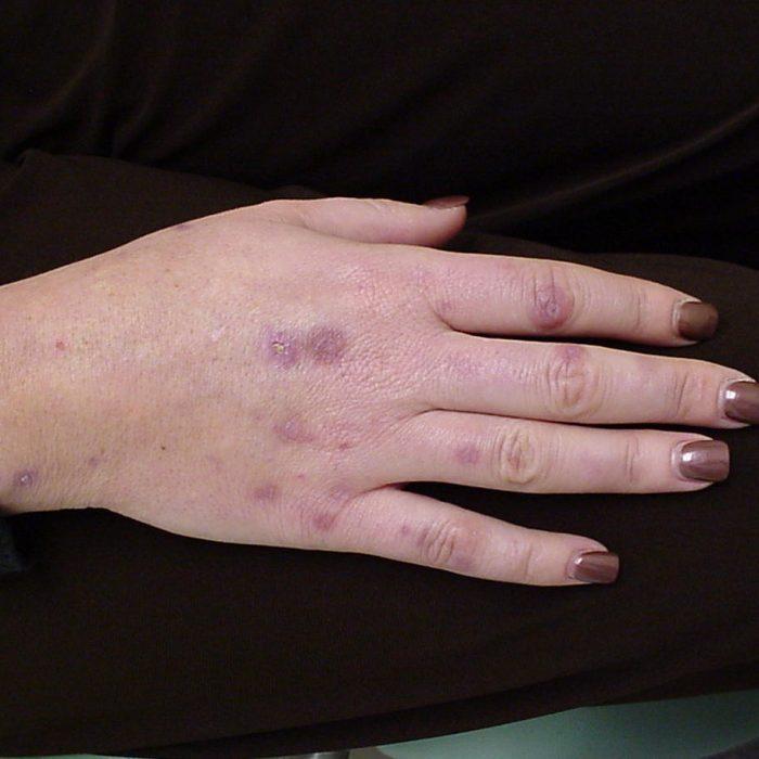 La porfiria, una enfermedad que deforma el cuerpo