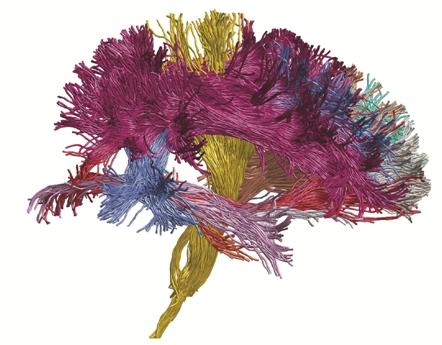 """Novedoso modelo para codificar el """"cableado"""" cerebral"""