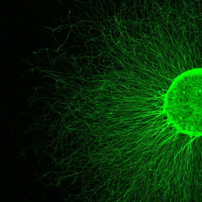 ¿Cómo se degeneran las neuronas?