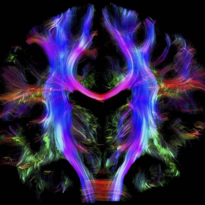 El cerebro y la prevención de enfermedades degenerativas