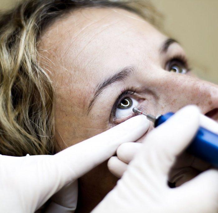 El síndrome de ojo seco puede llegar a afectar a 3 de cada 10 personas