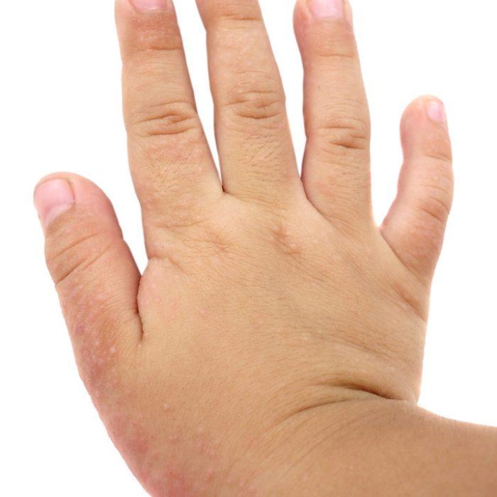 Dermatitis atópica: En invierno la enfermedad empeora
