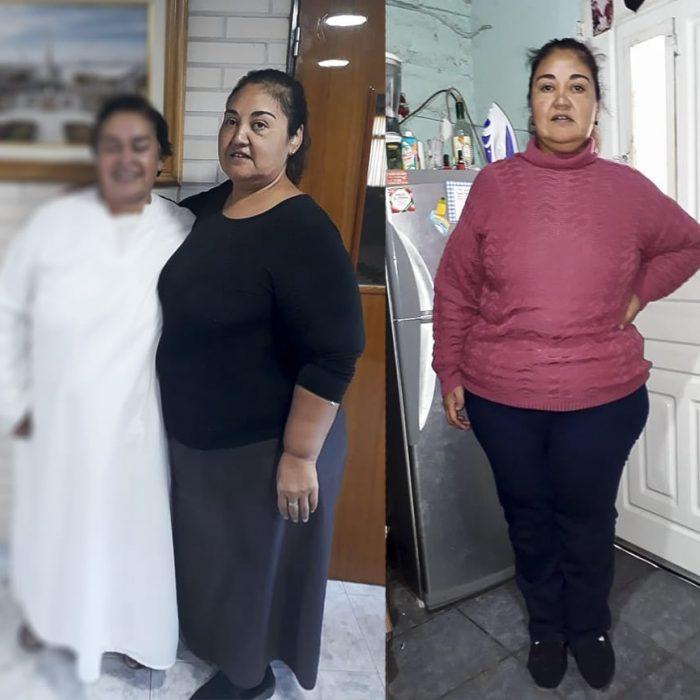 Pesaba casi 200 kilos y logró bajar 70 en un hospital público de la Provincia