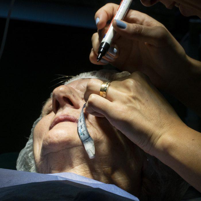 Emplean una técnica que acelera el tratamiento del cáncer de piel en un hospital provincial