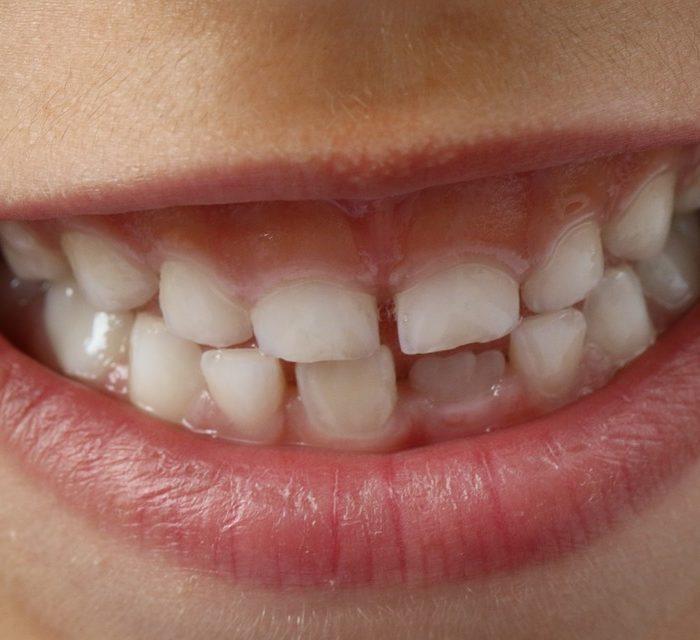 Las consecuencias de una mala higiene bucal en niños