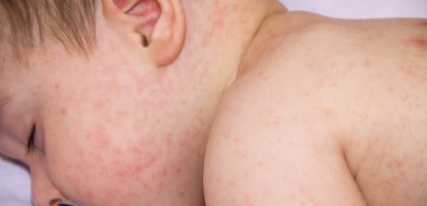 La dermatitis atópica es una de las enfermedades inflamatorias de la piel más frecuentes