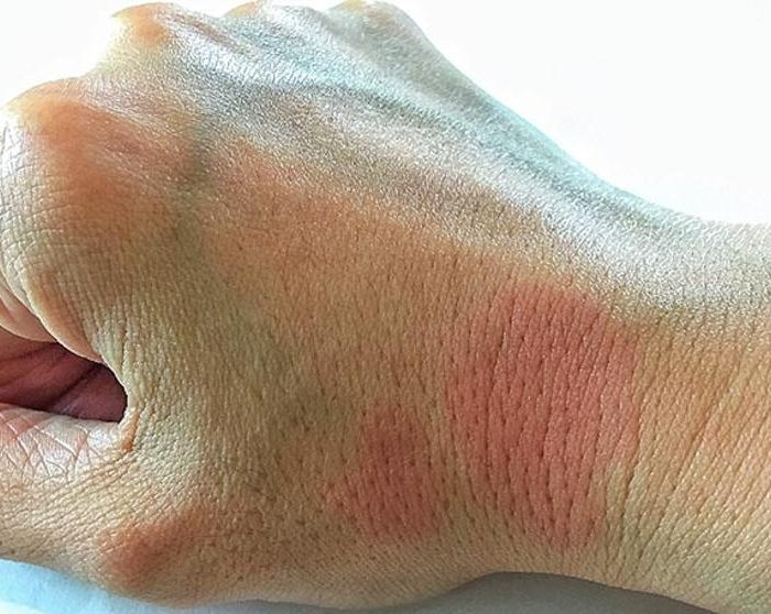 Nuevo test para predecir el riesgo de recaída en los enfermos de lupus