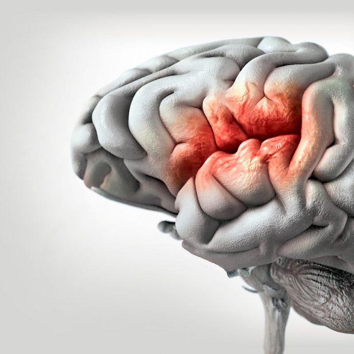 'Las enfermedades neurológicas agudas incrementan el riesgo de malnutrición'
