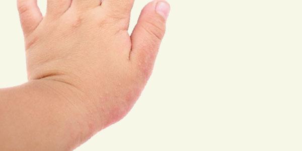 Ya está disponible en Argentina el primer medicamento específico para la dermatitis atópica severa en adultos
