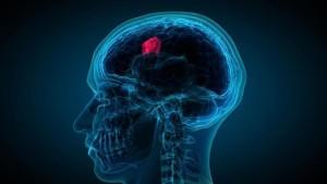 Un análisis de sangre puede predecir el pronóstico en el cáncer cerebral mortal