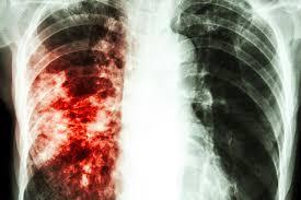 La desigualdad en los casos de tuberculosis en la Ciudad Autónoma de Buenos Aires