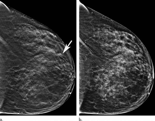 Aplican inteligencia artificial para la evaluación de la densidad mamaria