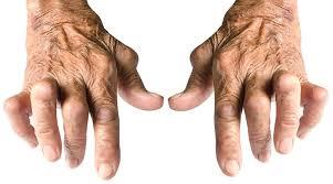 Avances en el tratamiento de la artritis reumatoidea