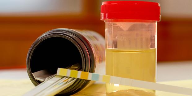 Una prueba de orina podría revolucionar el diagnóstico de cáncer de próstata
