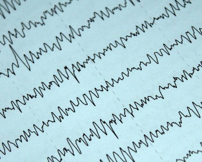 Cirugía de epilepsia: un método digital ayuda a identificar la zona donde se originan las crisis en cada paciente