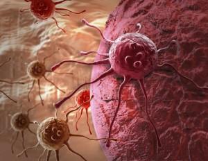 La OMS alerta que los casos de cáncer podrían aumentar en 60% las próximas dos décadas