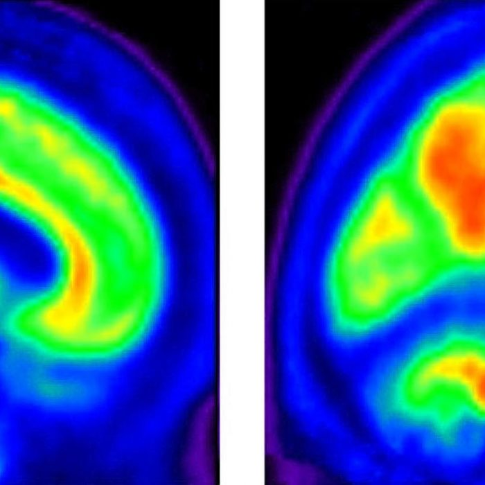 El test que detecta el Alzheimer desde la consulta del médico de familia