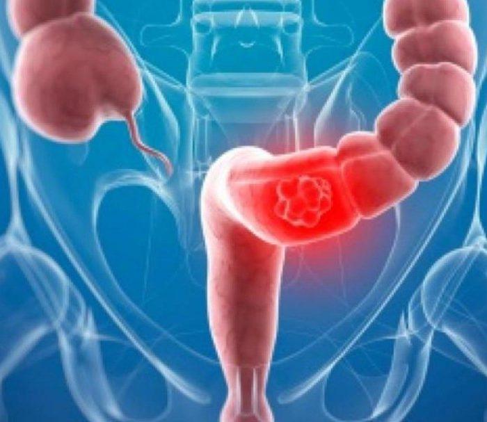 Cáncer de colon: estudios preventivos pueden salvar a la mitad de los pacientes