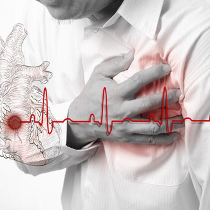 """""""El estrés por la cuarentena genera más emergencias cardíacas, pero estamos atendiendo menos"""""""