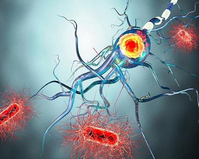 Esclerosis múltiple: muchos pacientes se sienten solos y relegados