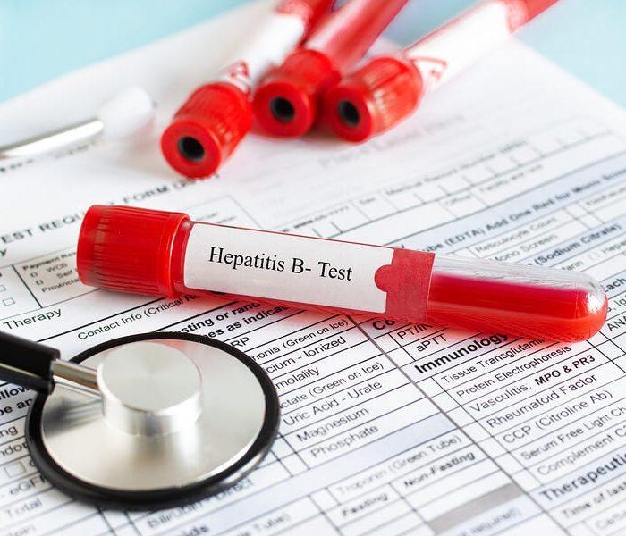 OPS pide mantener la prevención y tratamiento contra las hepatitis durante la pandemia