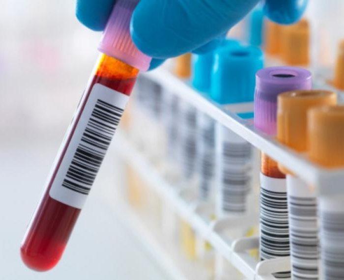 Un análisis de sangre podría detectar el cáncer en las etapas tempranas