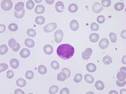 Un nuevo proyecto busca mejorar el diagnóstico y tratamiento de linfomas de linfocitos T