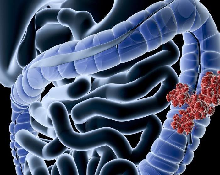 Disminuyeron consultas y cirugías por cáncer colorrectal con la pandemia