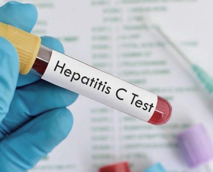 Virus de la hepatitis C, un enemigo silencioso que es posible curar