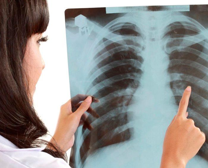 Aprobaron inmunoterapias simultáneas que prolongan la sobrevida en pacientes con cáncer de pulmón