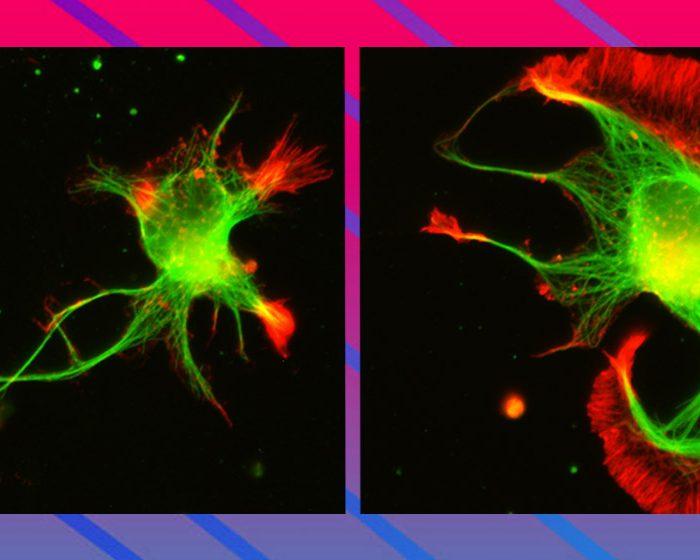 Viendo el interior de las neuronas