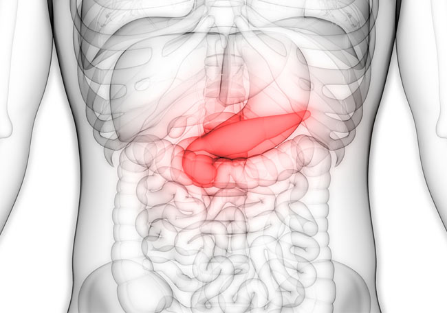 La proteína Galectina-1 podría utilizarse para el diagnóstico precoz del cáncer de páncreas