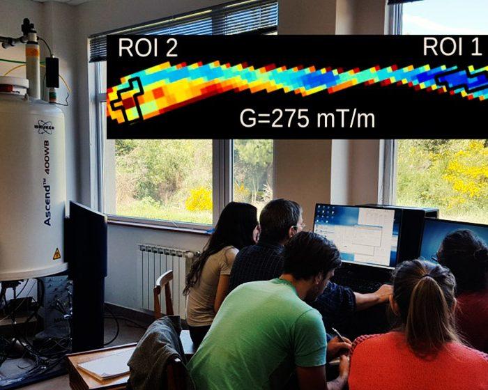 Desarrollan un método no invasivo para observar cambios a nivel celular mediante resonancias magnéticas