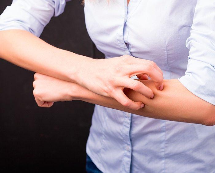 Dermatitis Atópica, un trastorno cutáneo que padecen entre un 15 y 30% de niños y niñas